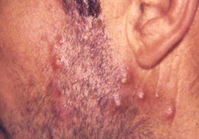 Furonculose : origine, manifestation et traitements