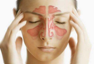Sinusite : causes, symptômes et traitement