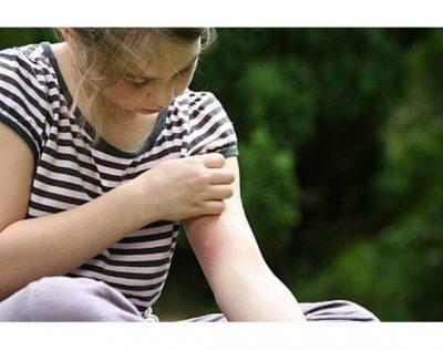 Les astuces naturelles pour apaiser les piqûres de moustique