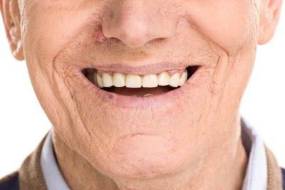 Colle dentaire : à quoi sert-elle ?