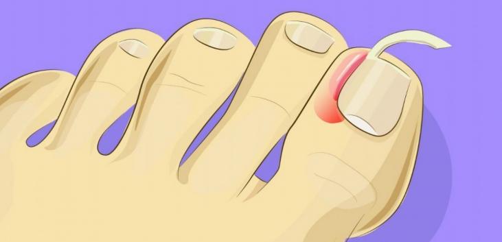 Comment soigner les ongles incarnés ?